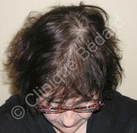 Résultat microgreffe de cheveux femme après- Clinique Bédard Montréal