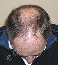 greffe cheveux homme avant - Clinique Bédard Montréal