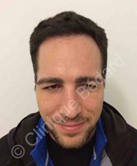 résultat microgreffe cheveux homme après - Clinique Bédard Montréal