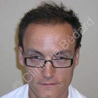 résultat greffe cheveux homme après - Clinique Bédard Montréal